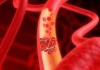 che cosa è la fibrillazione atriale?
